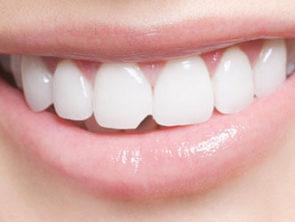 художня реставрація зубів нарощування відновлення стоматолог львів