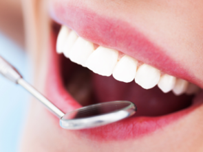 професійна гігієна чистка зубів